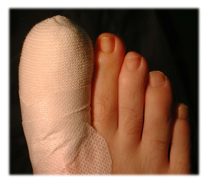 ingrown toenail 5